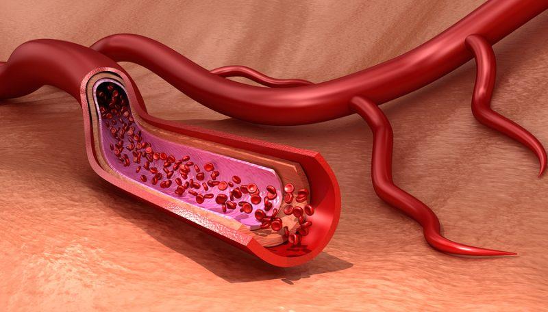 Leukozytoklastische Vaskulitis – Leukozytenvaskulitis