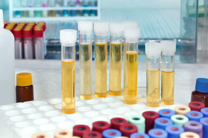 38. SSW: Leukozyten im Urin