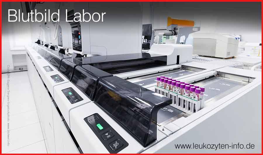 Labor Blutwerte