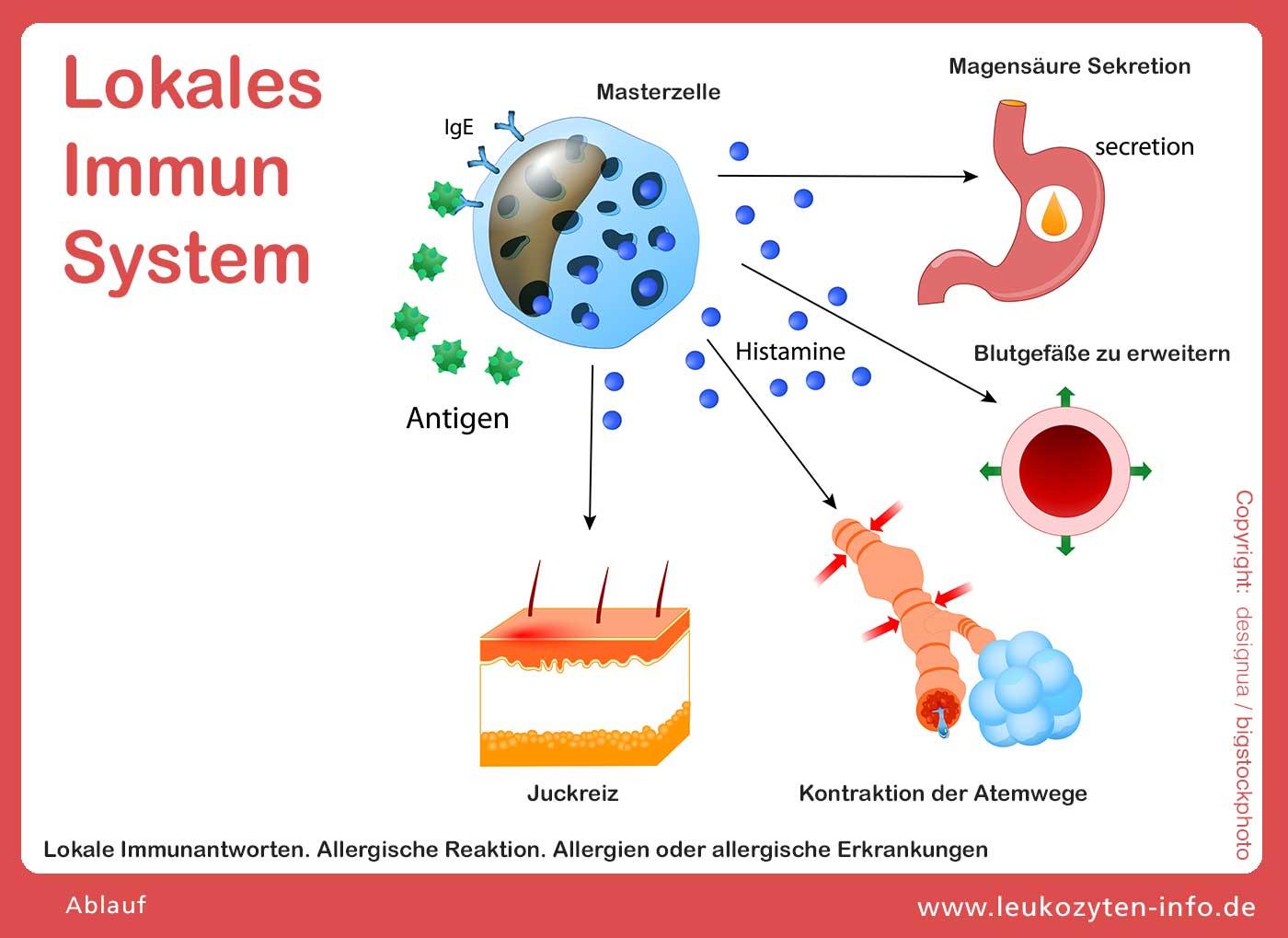 Plasmazelle Einsatz bei Allergien