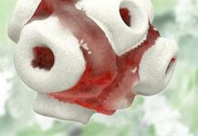 Diagnose: Zu viele weiße Blutkörperchen?